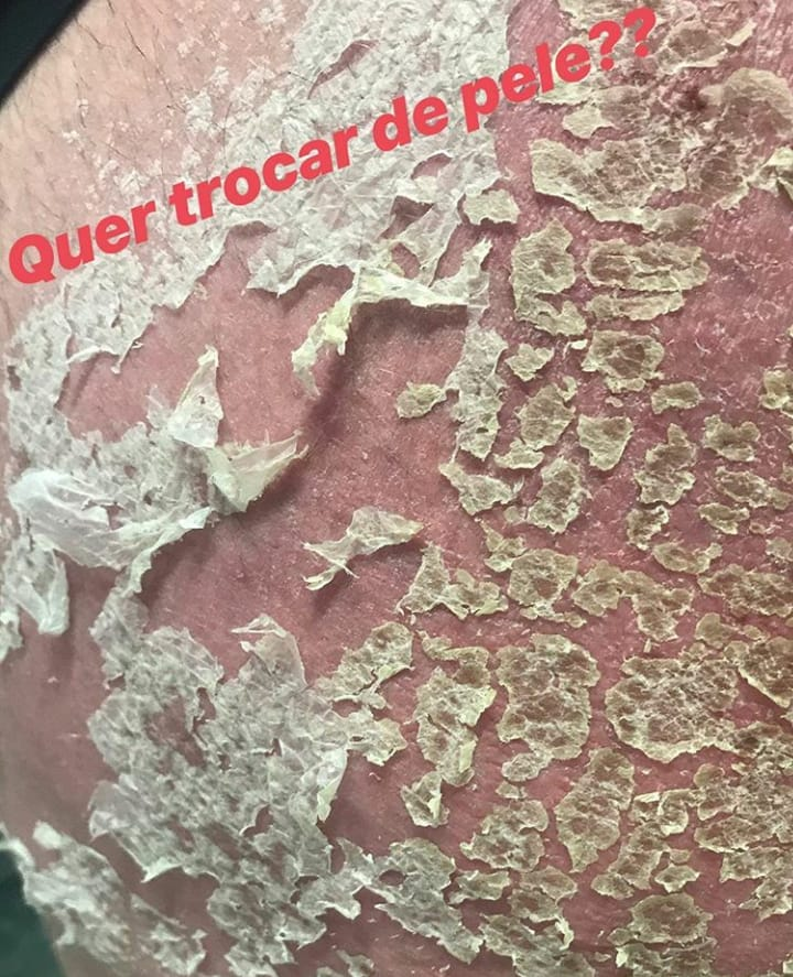 Peeling Rose de Mer antes e depois 10