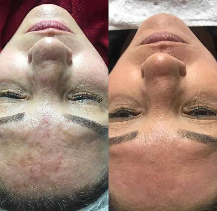 Peeling Rose de Mer antes e depois 6